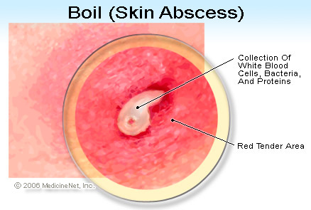 Abscess Diagram